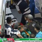Imam-ul-Haq gets hit real bad by a bouncer