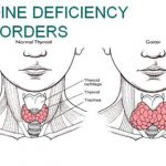 Iodine deficiency in Pakistan: Truth and rumours