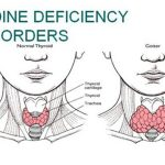 Iodine deficiency in Pakistan — truth and rumours