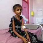 Yemen's children starve as UN seeks billions to avoid vast 'man-made' famine